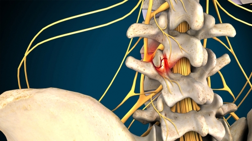 Spinal Decompression for Facet Joint Syndrome