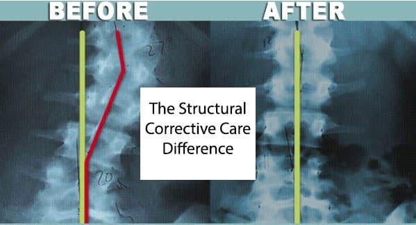 Structural Corrective Care Chiropractic Columbus, Ohio