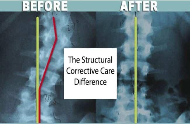 Scoliosis & Poor Posture