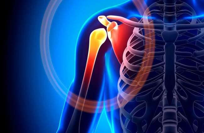 Chiropractic Care and Shoulder Pain Help Columbus Ohio