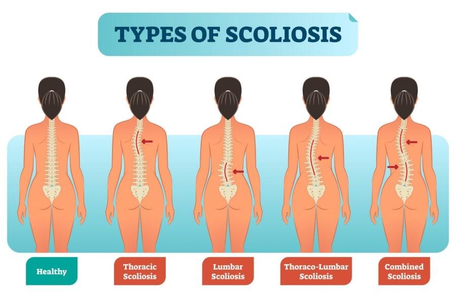 Scoliosis Treatment Columbus Ohio Types Of Scolisos